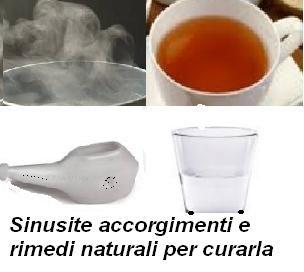 Sinusite accorgimenti e rimedi naturali per curarla