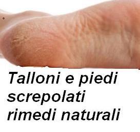 Talloni e piedi screpolati rimedi naturali