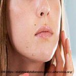 Acne giovanile i rimedi per alleviarla o curarla